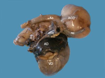 Mégaoesophage congénital secondaire à une bride vasculaire