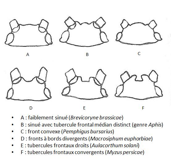 Différentes formes des sinus frontaux