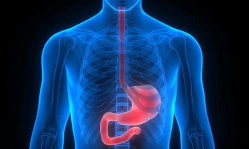 NACRe_Actualisation WCRF AICR cancer de l'estomac