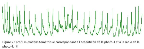 Profil microdensitométrique