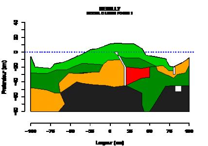 Quels sont les impacts de la Préparation Mécanisée des Sites (PMS) sur la structure des sols ?